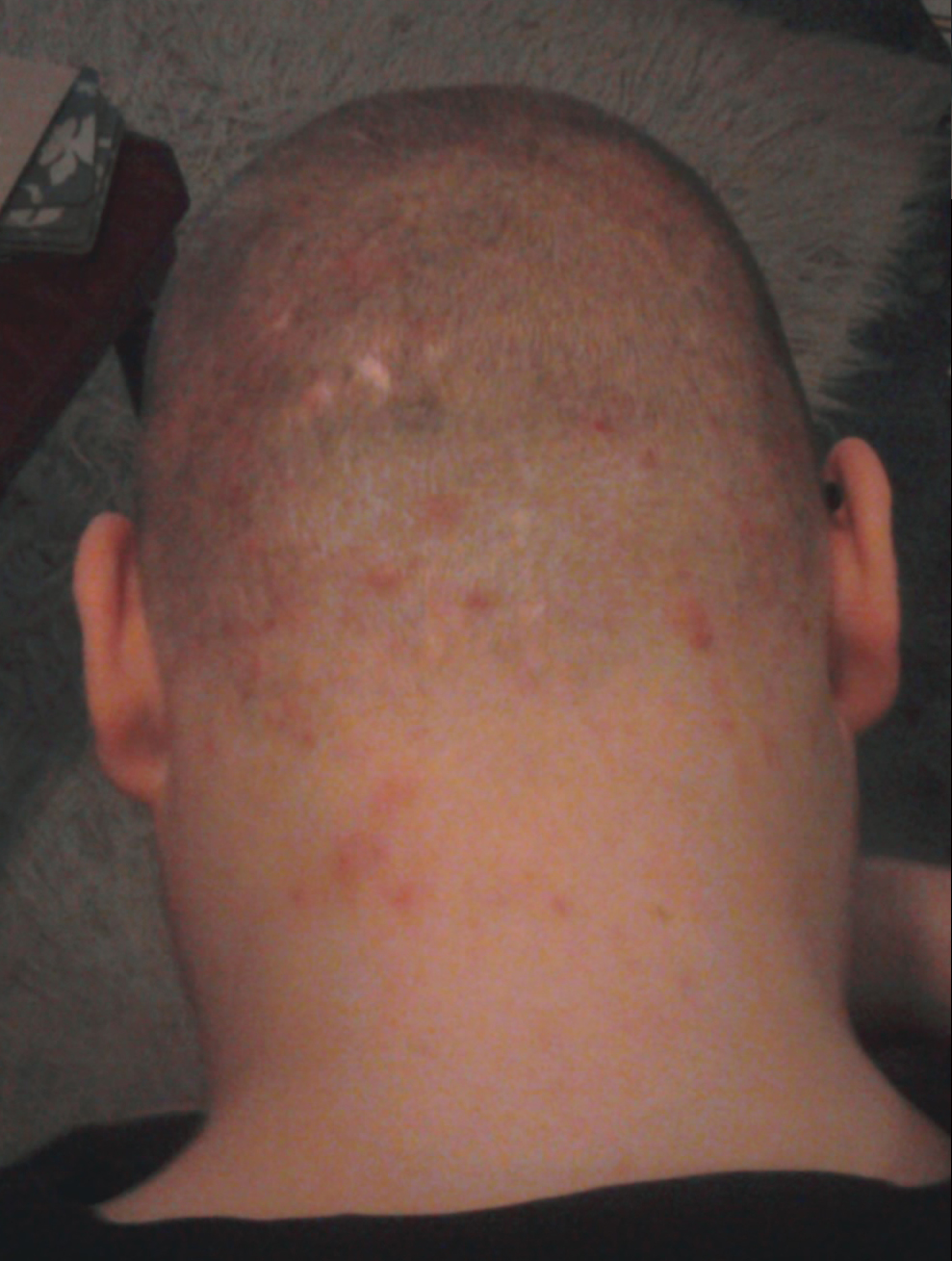Acne On Scalp And Neck